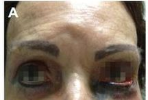 Adverse effects after permanent eye makeup / Abstract: Permanent makeup is a cosmetic tattoo that is used to enhance one's appearance, and which has become more popular among middle-aged and elderly women.  Read this case series and sign up to receive Clinical Interventions in Aging journal here: http://www.dovepress.com/severe-unexpected-adverse-effects-after-permanent-eye-makeup-and-their-peer-reviewed-article-CIA