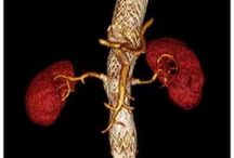 Thoracoabdominal aortic aneurysm repair / Abstract: Thoracoabdominal aneurysms account for roughly 3% of identified aneurysms annually in the United States.  Read this review and sign up to receive Vascular Health and Risk Management journal here: http://www.dovepress.com/thoracoabdominal-aortic-aneurysm-repair-current-endovascular-perspecti-peer-reviewed-article-VHRM