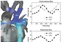 Non-invasive imaging for congenital heart disease / Abstract: In the past three decades, technical advances in cardiovascular imaging have created a better balance in the requisite trade-off between spatial versus temporal resolution that is inherent to all dynamic imaging modalities.  Read this review and sign up to receive Reports in Medical Imaging journal here: http://www.dovepress.com/articles.php?article_id=19369