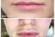 Before & After / Before & After Shots from our Skin Care Treatments and Procedures