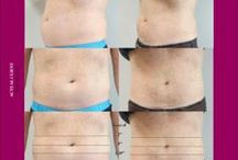 Body Sculpting Medical Treatments / The Spa at Lafayette is pleased to offer a number non-invasive and minimally invasive options for body contouring and sculpting. Procedures and treatments designed to give you the body you want.  Liposonix - ThermiTight - Tickle Lipo - ThermiLift