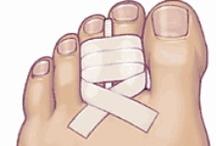 General Foot Health Info