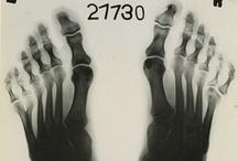 Foot Anomalies