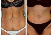 Before & After: Tummy Tuck / Here you can view actual patient before and after photographs from surgeons who are ASPS members and certified by The American Board of Plastic Surgery. These photographs represent typical results, but not everyone who undergoes plastic surgery will achieve the same.