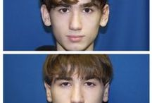 Before & After: Ear Surgery / Here you can view actual patient before and after photographs from surgeons who are ASPS members and certified by The American Board of Plastic Surgery. These photographs represent typical results, but not everyone who undergoes plastic surgery will achieve the same.