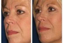 Before & After: Dermal Fillers / Here you can view actual patient before and after photographs from surgeons who are ASPS members and certified by The American Board of Plastic Surgery. These photographs represent typical results, but not everyone who undergoes plastic surgery will achieve the same.