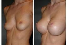 Before & After: Breast Augmentation / Here you can view actual patient before and after photographs from surgeons who are ASPS members and certified by The American Board of Plastic Surgery. These photographs represent typical results, but not everyone who undergoes plastic surgery will achieve the same.