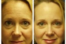 Before & After: Botox / Here you can view actual patient before and after photographs from surgeons who are ASPS members and certified by The American Board of Plastic Surgery. These photographs represent typical results, but not everyone who undergoes plastic surgery will achieve the same.
