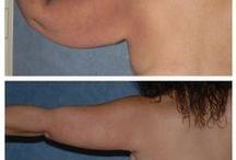 Before & After: Arm Lift / Here you can view actual patient before and after photographs from surgeons who are ASPS members and certified by The American Board of Plastic Surgery. These photographs represent typical results, but not everyone who undergoes plastic surgery will achieve the same.