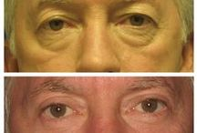 Before & After: Eyelid Surgery / Here you can view actual patient before and after photographs from surgeons who are ASPS members and certified by The American Board of Plastic Surgery. These photographs represent typical results, but not everyone who undergoes plastic surgery will achieve the same.
