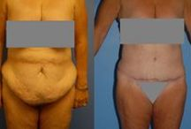 obesity & plastic surgery, extreme weightloss before/after / by chrissy s