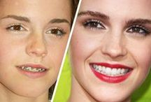 Celebrities with Braces / We love seeing these celebrities sport their orthodontics proudly! James I. Lopez, DDS, MS, MS, PC | Columbus, GA | http://www.columbuskidsdentist.com/