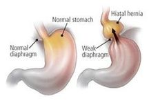 Hiatal Hernia Types / This board will help to understand types or stages of hiatal hernia condition