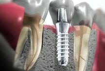 Implantologia / Info e immagini di Implantologia