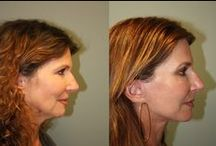 Before and After Photos / Here are some great examples of Dr. Stong's cosmetic surgery results.