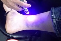 Blue Light Therapy / Blue lights are topical anti-bacterial and anti-fungal lights and can also be used any time there is excessive heat in an area and you would normally apply ice.
