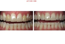Before and After Pictures / Before and After pictures of cosmetic and everyday (what's the real difference?) dentistry performed by Buzbee Dental in Springfield, MO.