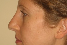 Nose Job (Rhinoplasty) Before & After Pictures