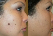 Skin Mole Removal Tips & FAQs