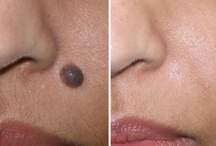 Get Rid Of Moles / There are hundreds of natural solutions when it concerns taking out an unwanted mole from your body. While there are many alternatives available, more and more individuals are going for Natural Mole Removal treatments. Natural Mole Removal solutions are the more affordable remedy to unpleasant surgical treatment. Here are a couple of procedure choices, which you could apply in your everyday life and get remarkable results.