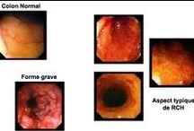 Rectocolite Hémorragique / La Rectocolite hémorragique (RCH) est une maladie inflammatoire chronique de l'Intestin (MICI) de cause inconnue qui touche de façon spécifique constamment le rectum et qui s'étend, de manière continue, plus ou moins haut, vers le cæcum respectant le grêle. Elle va évoluer pendant toute la vie de manière imprévisible sous la forme de poussées entrecoupées de rémissions.