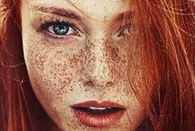 Reds & Freckles