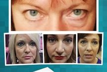 Instantly Ageless from Forever Ageless by Sue Stuff to Buy / Instantly Ageless and other products, before and afters.  Totally awesome product.