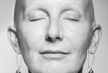 Alopecia 101 / by New England Associates