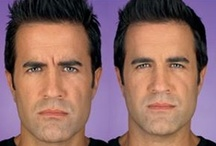 Botox & Juvederm / Botox and Juvederm help us complete, total facial esthetics for our clients.