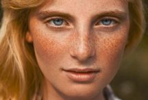 7 marks of beauty: Freckles