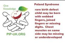 Poland Syndrome | Flash cards / Flashcard facts on #polandsyndrome