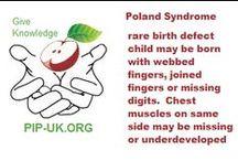 Poland Syndrome | Flash cards / Flashcard facts on #polandsyndrome