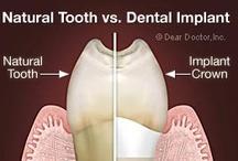 Dental ッت