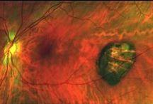 Focus on Eye Health