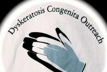 Dyskeratosis Congenita Outreach - Support Group / Information on our support group for patients and their families that have Dyskeratosis Congenita or a Telomere Biology Disorder.  www.dcoutreach.org