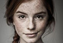 Ginger Pride / Ginger (adj., US) — this combination of pale complexion, freckles, and red hair. Without the exoticization, fetishism, racism, classism, &c. found in the UK and elsewhere (cf., <http://english.stackexchange.com/questions/5060>).