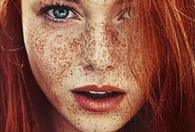 Freckles are so beautiful