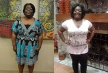 Changing More Lives - Featured Weight Loss Surgery Patients / Bariatric surgery success stories. Here are some photos and stories from our Dallas, Fort Worth weight loss surgery patients.
