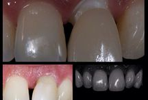 Dentistry  / About dentistry, implantology and everything related with oral healthcare.
