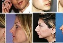 Rhinoplasty Before And After / When one does online searches for nose jobs before and after men, it is found that many would like to have Rhinoplasty (medical term) procedure to correct and reconstruct the nose due to various reasons. It may be congenital defect, due to trauma or respiratory impediment or maybe for enhancing the nose aesthetically. The nose job can be surgical and non – surgical depending upon the need of the patient.