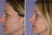 Nose Job Men Before After / An amazing feature about nose jobs before and after women is the looks. The facial appearance is altered with a nose job. This in medical terms is known as 'Rhinoplasty'. In layman terms nose surgery is shaping the nose thereby enhancing the facial features. The appearance, balance and confidence are improved. Nose surgery is conducted in emergencies of accidents, abnormalities or impaired growth. It is an individualized procedure for self.