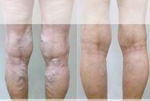 Varicose Veins / What are varicose veins? What are the causes of varicose veins? How are they treated?