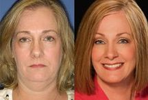 Before & After: Cosmetic Surgery