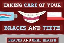 Taking Care of Your Braces