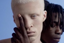 The Beauty of Albinism / by Tamara Mulkey-1