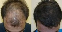 Hair Transplant in Chandigarh / We provide best Fue hair transplant in Chandigarh at an affordable rate. For Cost estimation, Whatsapp Head Photos at 9815727418