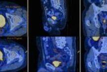 AOTW: Urological Oncology