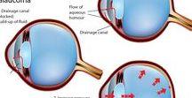 Glaucoma / http://vivideyecare.ca/
