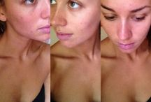 coconut oil for acne / coconut oil natural acne remedy