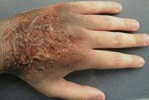 SFX (Special effects)